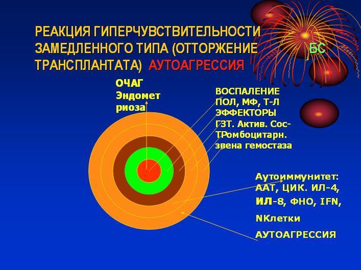 Эндометриоз проф. Старцева rustarts.ru
